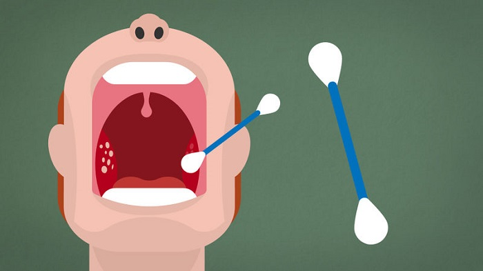 13 Tips to Get Rid of Tonsil Stones Without Gagging