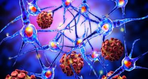 Autoimmune Diseases : 7 things to know about autoimmune diseases