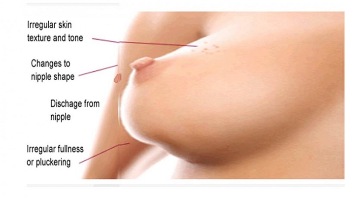 Breast Cancers Symptoms  5 signs of breast cancer that you did not know