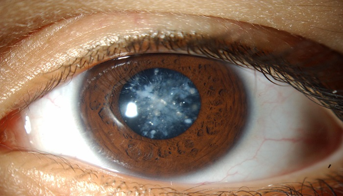 Cataracts | 7 things you need to know about cataracts