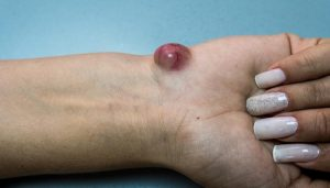 Cyst Malignant   7 tips to recognize a cyst malignant